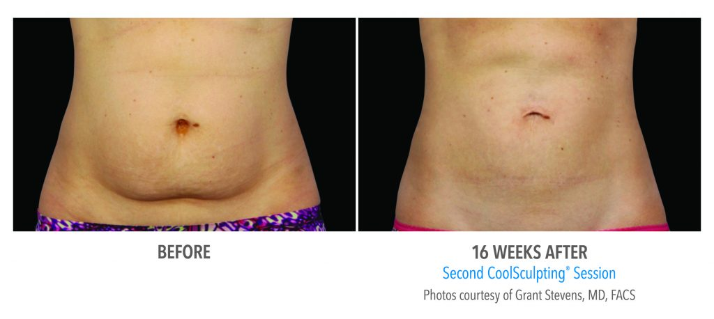CoolSculpting 16 weeks women stomach before and after