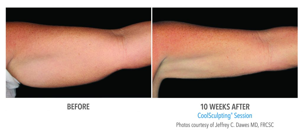 Coolsculpting before and after 10 weeks