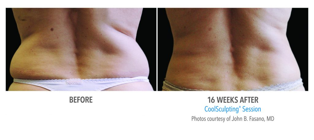 CoolSculpting before and after 16 weeks female