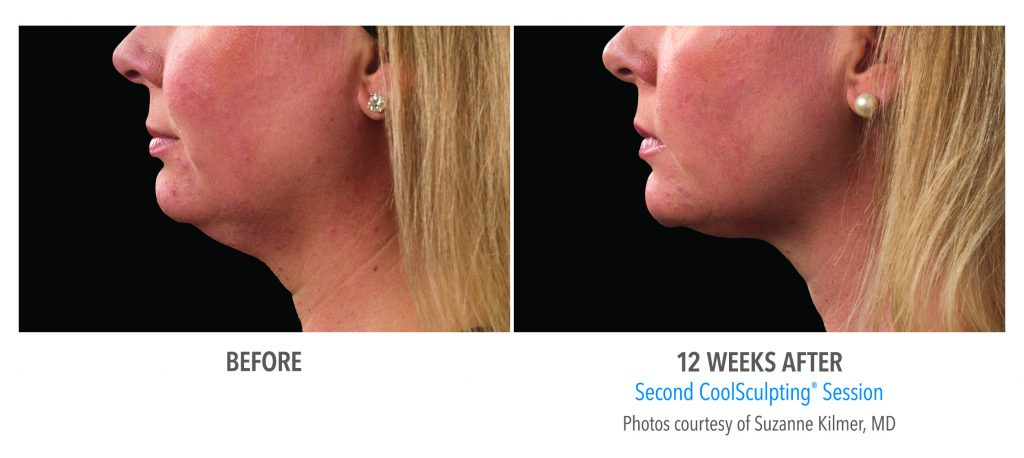 Coolsculpting 12 weeks before and after