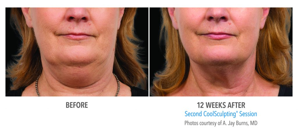 CoolSculpting before and after Women