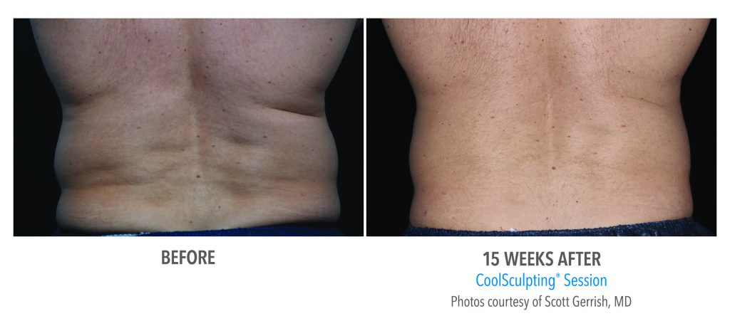 CoolSculpting before and after 15 weeks men